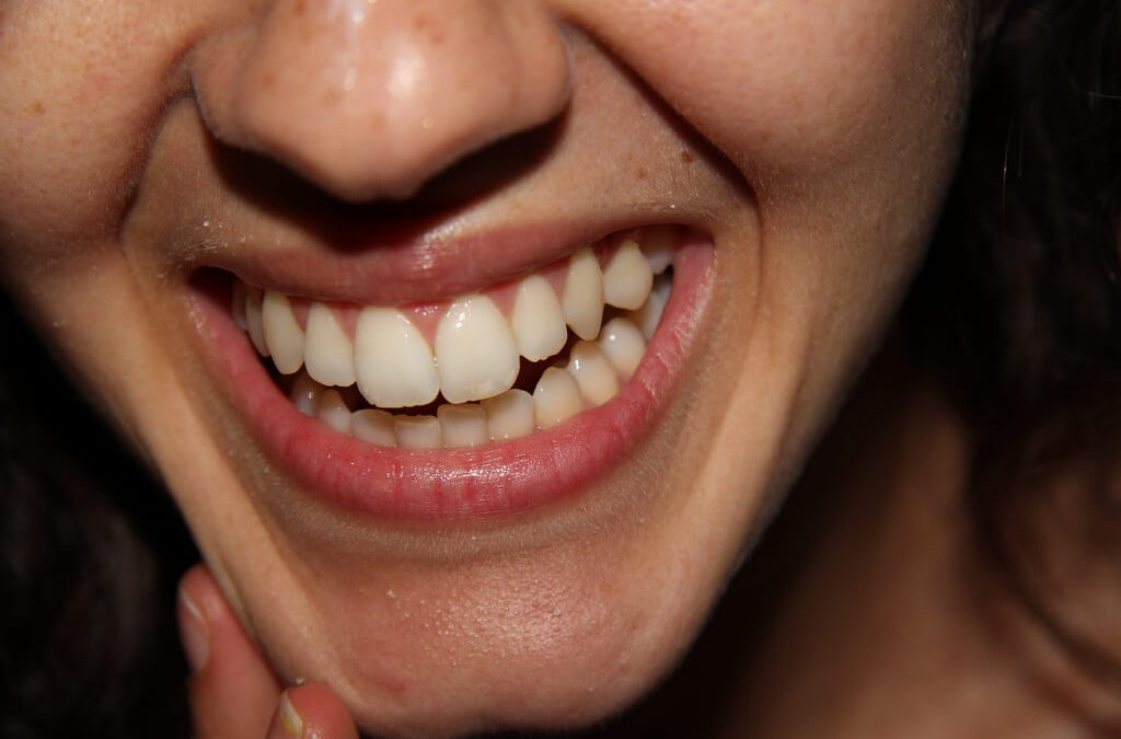 Natural Remedies for Teeth Whitening