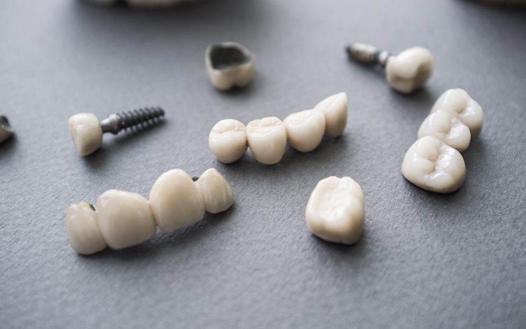 Why Temporary Tooth Replacement Important