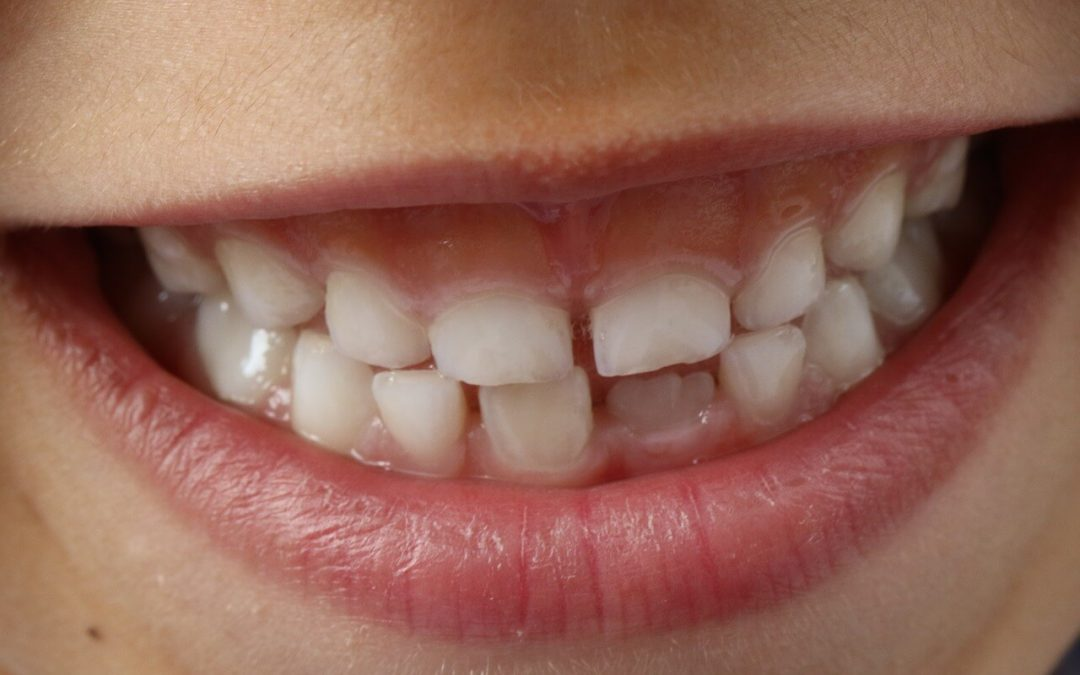 What to do when there's food stuck in teeth