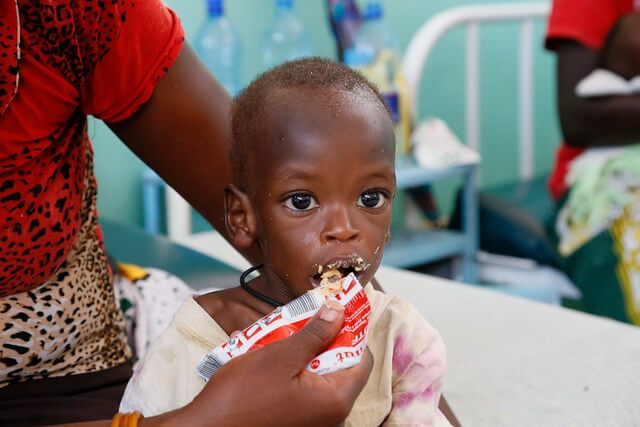 malnutrition children underweight