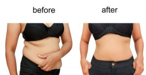 exercise and diet after liposuction