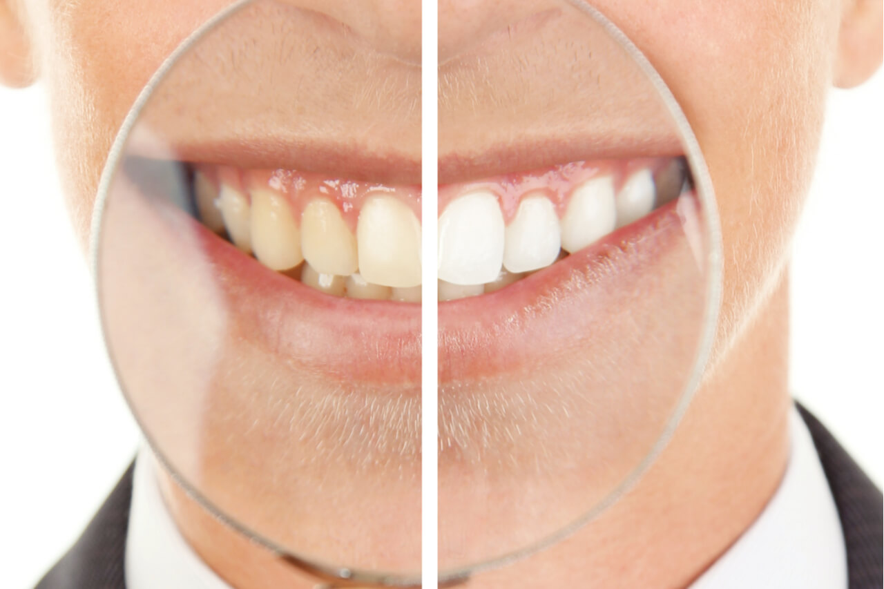 How Much Does Zoom Teeth Whitening Cost Benefits And Risks