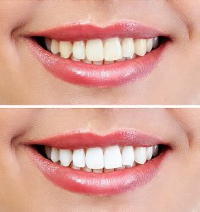 zoom teeth whitening cost