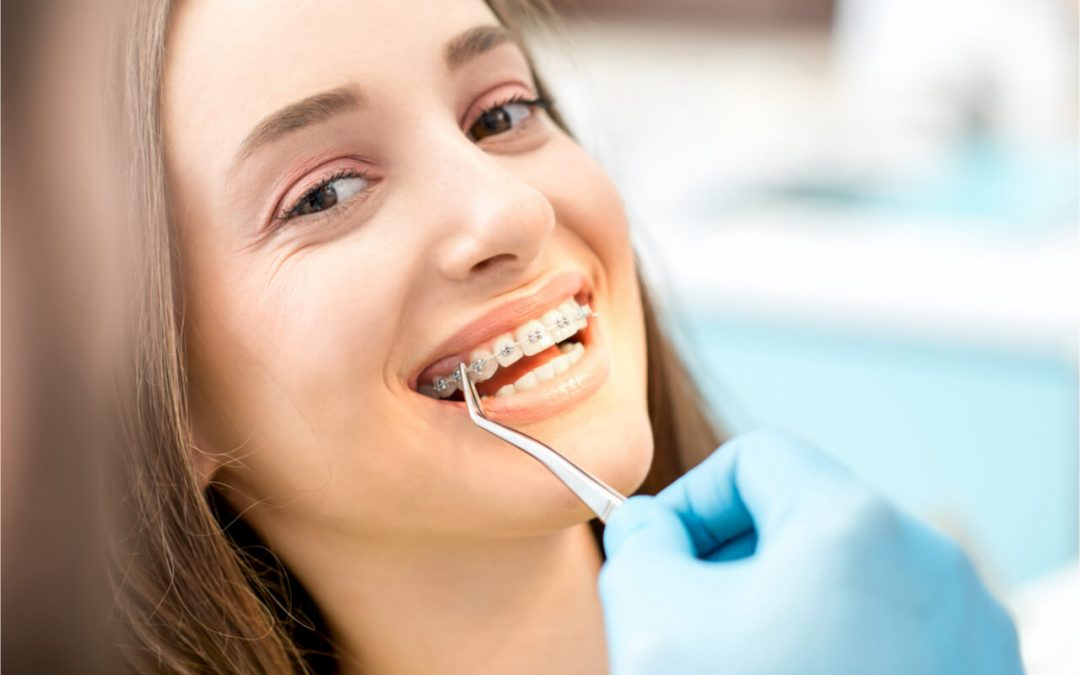 What Are The Three Classes of Malocclusion? (Teeth Misalignment)