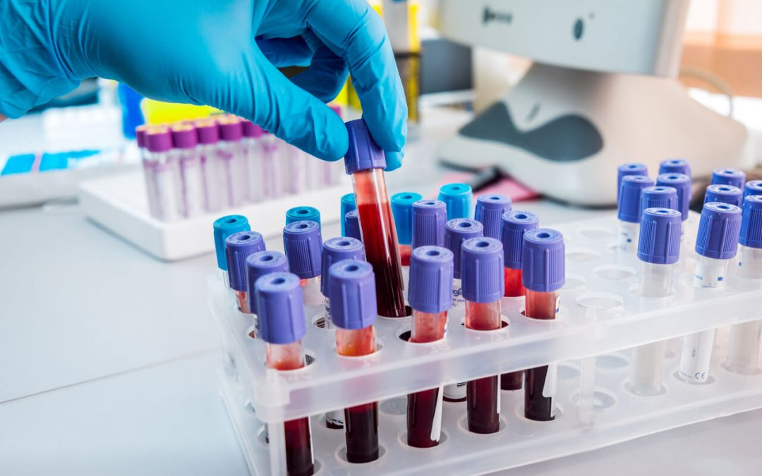 Blood test for nutritional deficiencies