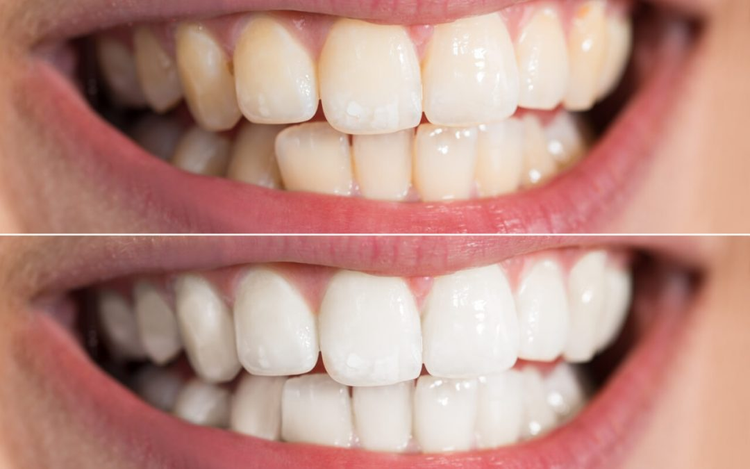 Facts and Components of White Diet After Teeth Whitening