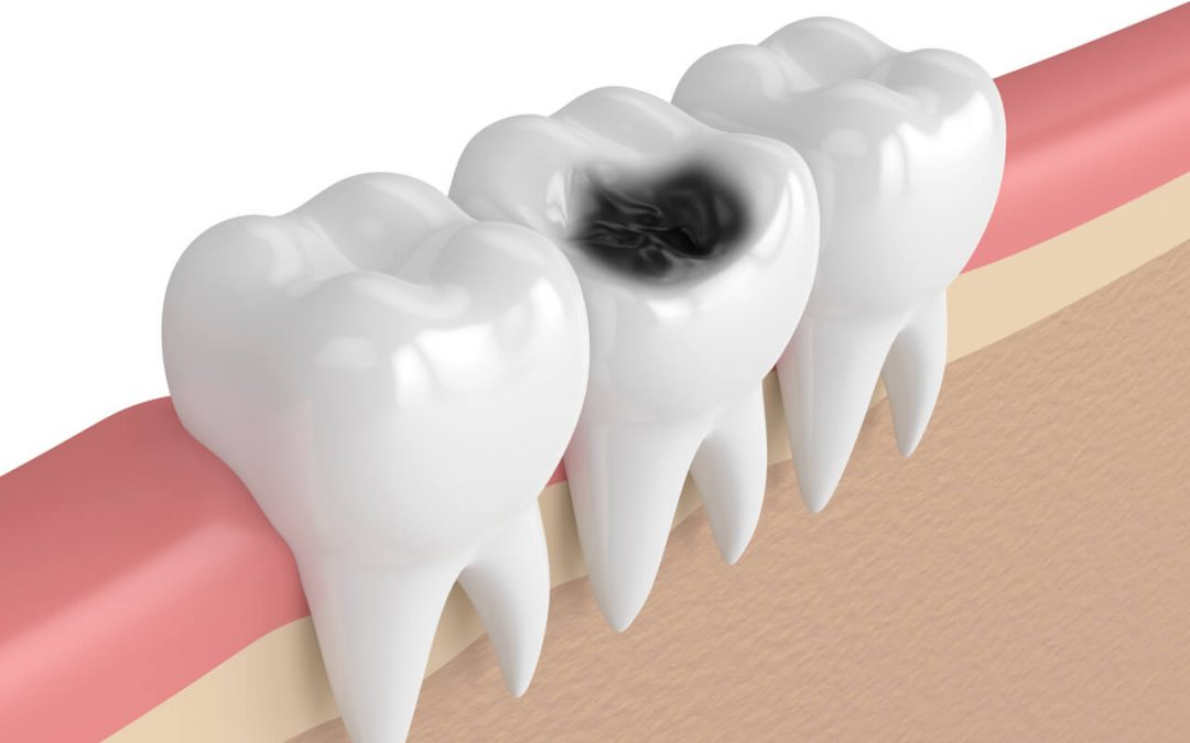 Common medications that may cause tooth decay