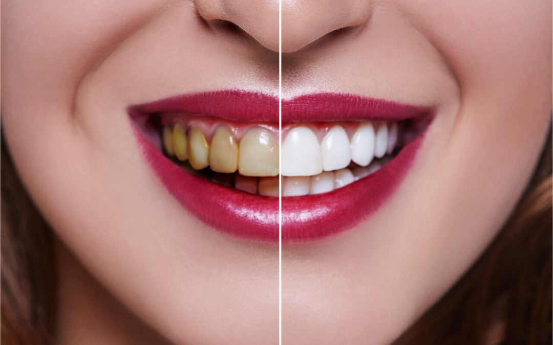Teeth whitening aftercare: Maintaining your shine