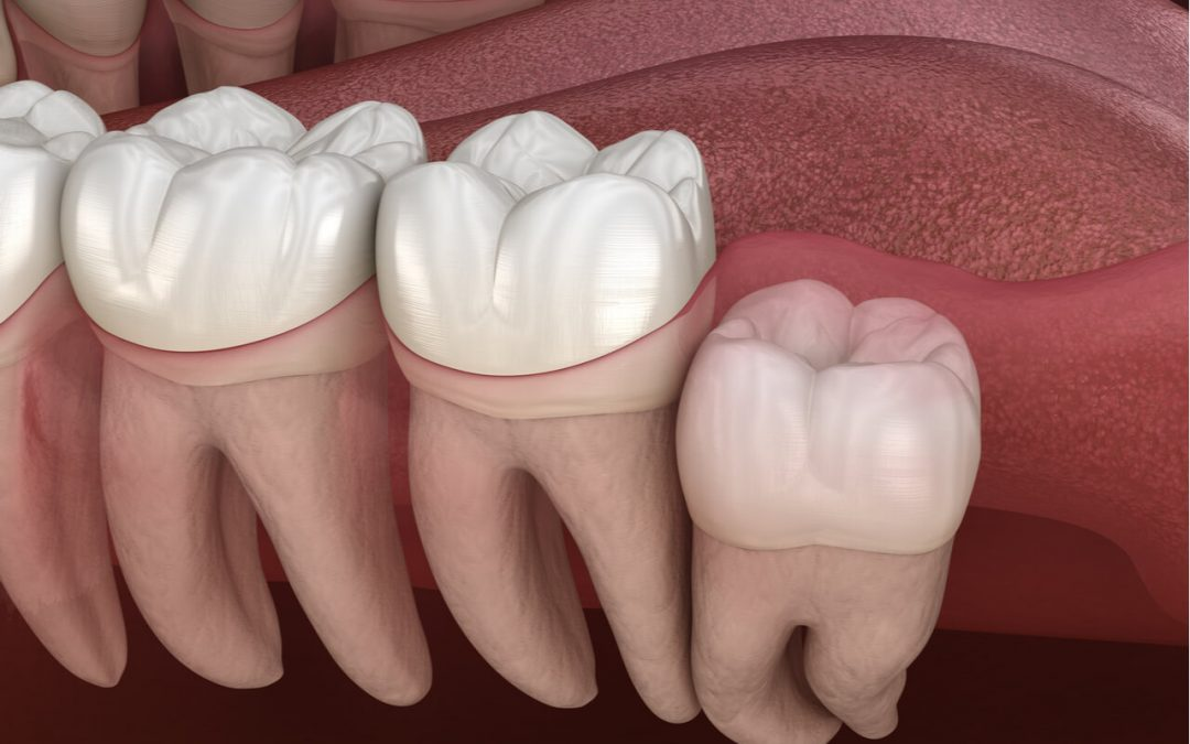 Dental advice for proper diet after wisdom tooth extraction