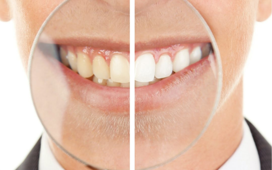 How Much Does Zoom Teeth Whitening Cost? (Benefits And Risks)